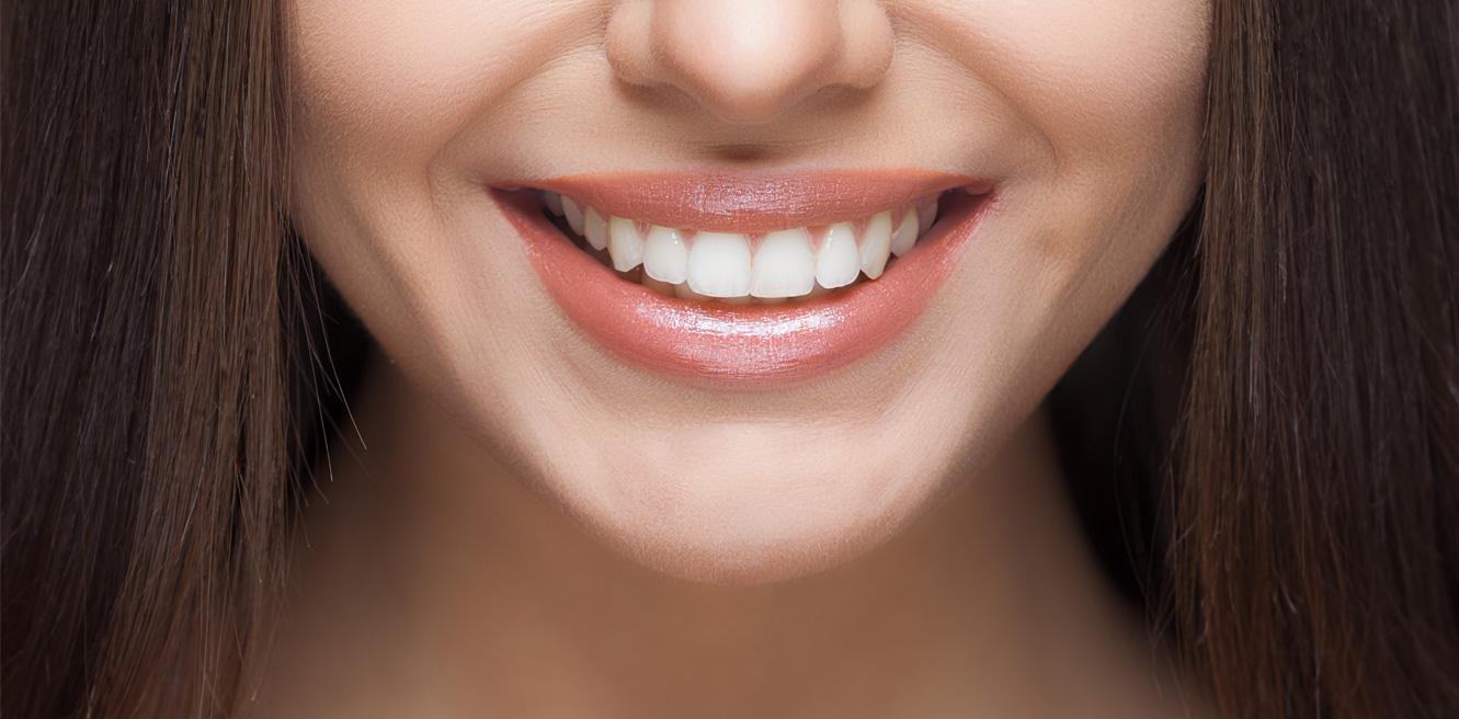tandblekning vacket vitt leende